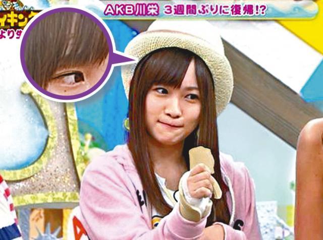 日本AKB48女星曾遭瘋狂惡徒鋸傷,最近她「右手困難拿筆姿勢」後遺症照片曝光讓大家都揪心淚崩了...