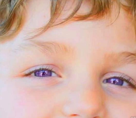 他真的沒帶變色片 全世界僅600人有「夢幻紫羅蘭眼」