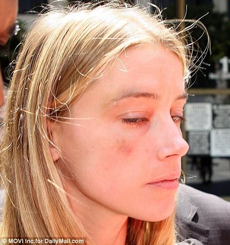 強尼戴普的妻子長時間偷計畫拍下他家暴的證據,發佈出來的照片可能會從此毀掉強尼戴普!