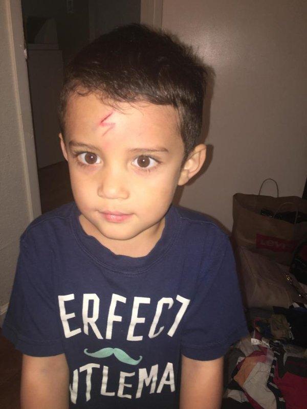 男孩臉被割傷怕醜,媽媽「畫兩撇」就把他徹底變身同學們都羨慕死了!