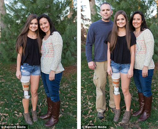她在9歲時就得了罕見癌症腿部必須切掉並且改造成「腳翻轉模樣」,但沒想到這卻讓她的生活變得美好!