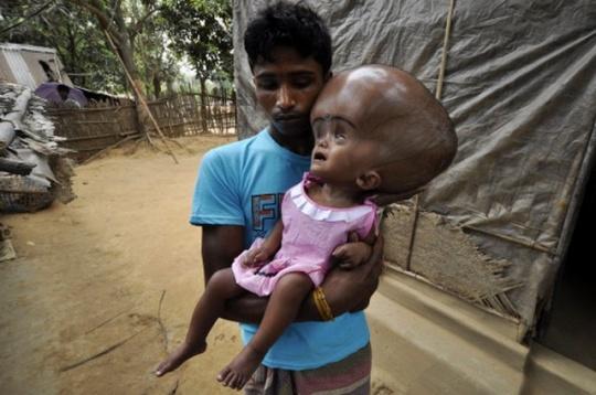 這名「頭部腫3倍大的水腦症女孩」連醫生都說活不了,但看到她2年康復後的天使笑容會讓你相信世界的美好!