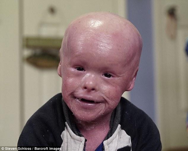 這名5歲小男孩天生擁有魚鱗的皮膚,媽媽每天需要為他刮下的鱗片2次的畫面會讓你無比感動。