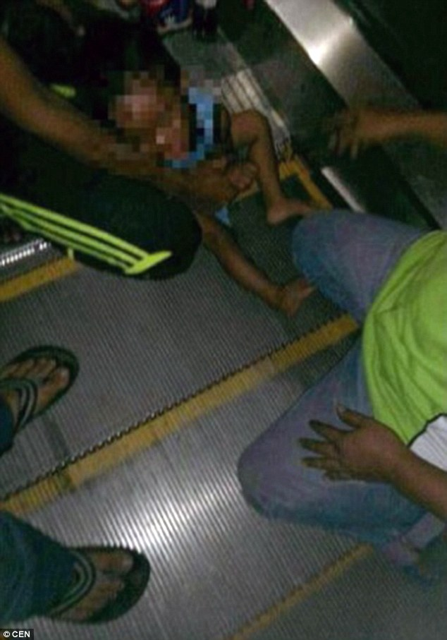 超恐怖的搶救!當這名3歲男孩搭乘電扶梯時,褲子被捲入結果連GG都一起被捲進去!