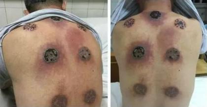 中國男子因肩膀痠痛去拔罐直到有天高燒就醫,醫生掀開衣服看到恐怖畫面才發現太晚了...