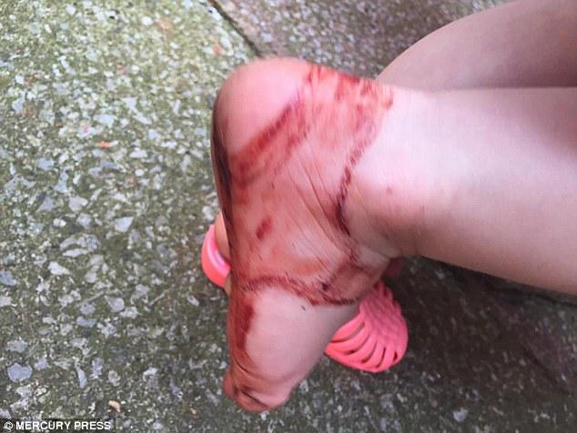 2歲女孩穿上「這種常見的塑膠鞋」30分鐘後就狂哭,好險立刻脫掉「血腥超恐怖」!
