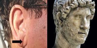 如果你的耳朵也像這樣長毛的話,超嚴重...請你立刻趕快找個時間去看醫生!