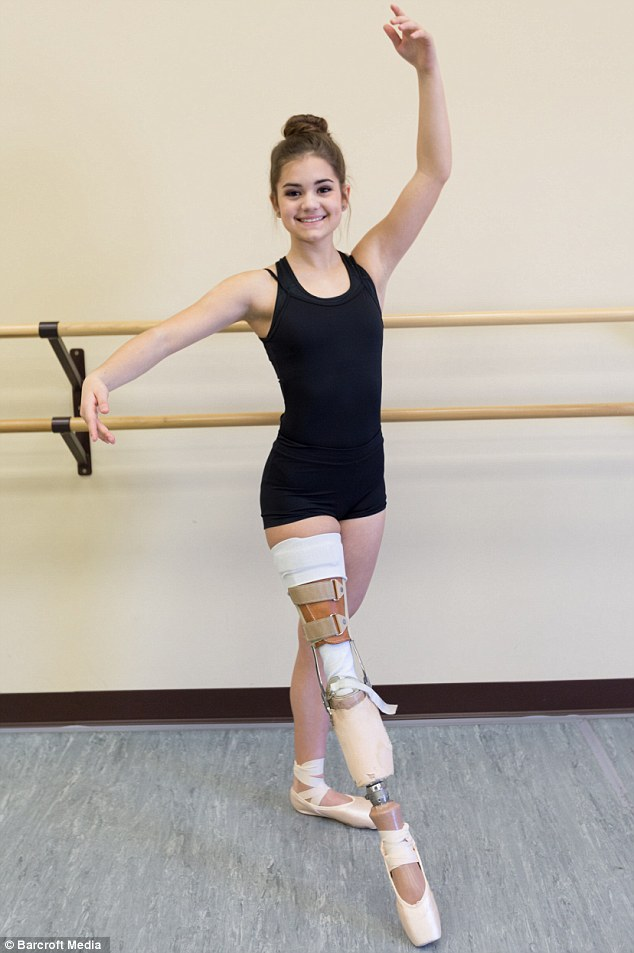 Slow process: It took Gabi a year to learn to walk on her new leg, and another year to get back to dancing