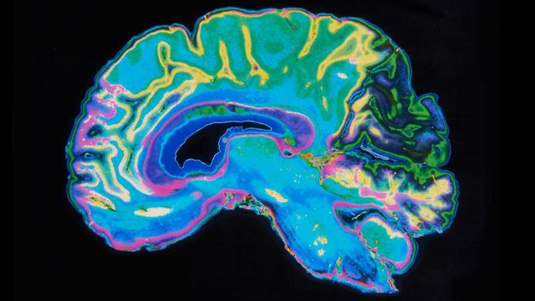 Brain-Lefty