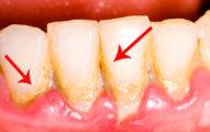 如何不去牙醫那洗牙就可以清掉發臭的牙結石?只要3次這樣刷就可以拯救你一嘴口臭了!