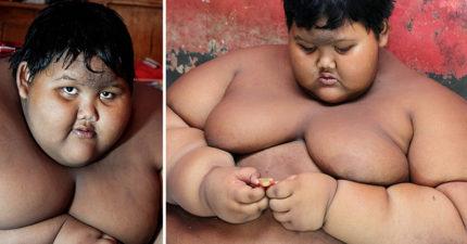 這位印尼男童今年才10歲但「體重已經快破200公斤」!看到他的超扯下半身我才知道人類真的沒有極限...