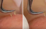 來自台灣的美容師示範「無痛系列」的除痘除粉刺超強功夫,根根拔起時讓人受不了一直按重播!