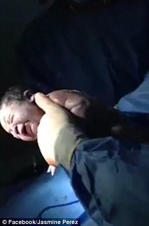 「羊水沒破」寶寶還在裡面掙扎,網友看到這「8萬分之1機率」的畫面都大呼:「太美了!」(內有影片)