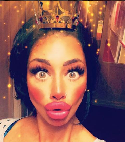 這名單親媽媽花8萬將嘴唇整成超瘋狂豐唇,面對批評她表示「這還不是最厚的」!