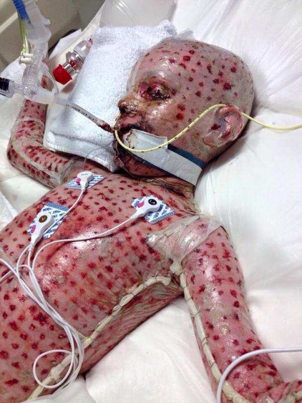 兒子被毒藤扎到過敏「媽媽給他吃頭痛藥」,全身皮膚脫離快死掉家長看了都嚇壞!
