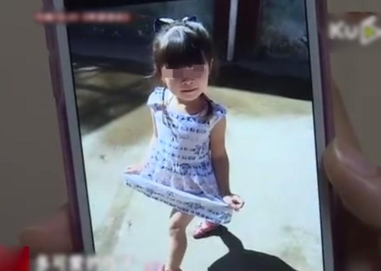 4歲女童和鄰居小孩玩耍時不慎被火銃開槍擊中,一瞬間「200顆鋼彈高速射入身體」X光片看得讓人不忍...