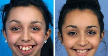 她歷經6年的時間做了這個罕見的臉部手術治療,從側邊看更覺得不可思議!