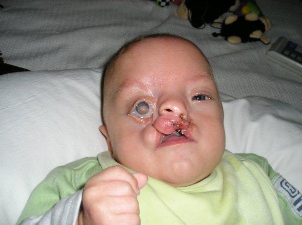 這個小嬰兒「提早14週來到人世」一生下來臉部就嚴重變形,現在9歲的他擁有世界上最令人動容的微笑!
