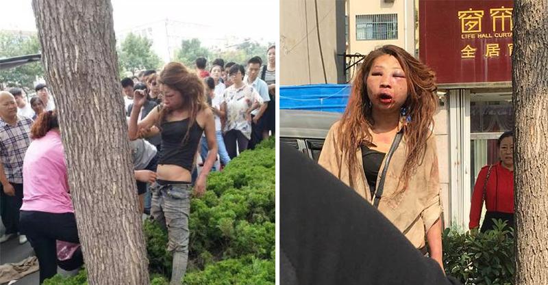 網友路邊驚見「被暴打成豬頭」的小三 被打傷前「真的很漂亮」!