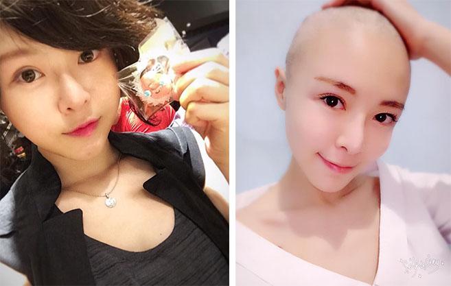 《甘味人生》女星罹患卵巢癌剃光頭,樂觀面對「9次化療」讓粉絲都心疼到紛紛為她加油!