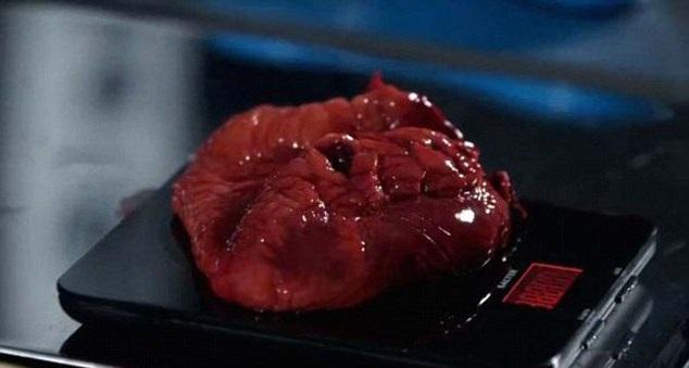 驗屍官「解剖107公斤胖女」,一切開「超厚奶油脂肪」炸出噁爆!(影片慎入)