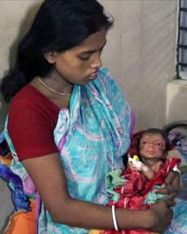 這個嬰兒「一出生就滿臉皺紋」彷彿是個80歲老頭,背後看更以為他是「毛怪」的小孩!