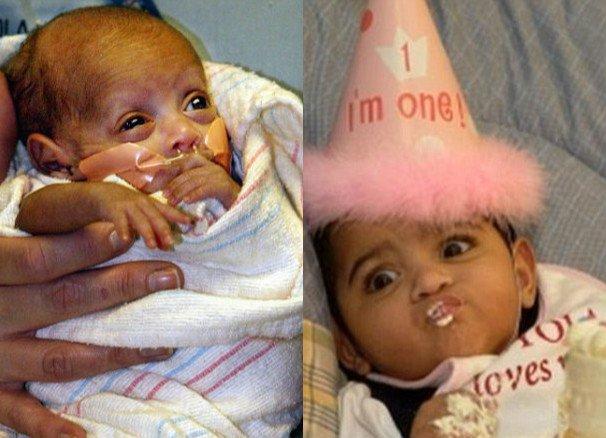腳只有3cm身體只有22cm,世界最小女嬰奇蹟存活!