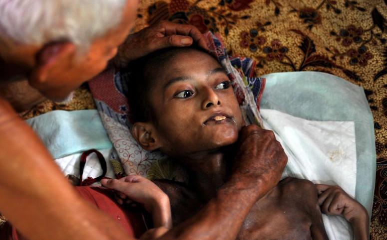 這位88歲爺爺拖著年邁的身軀「照顧患有怪病的骷髏孫子」,看他17年來「光是餵飯模樣」都讓人鼻酸...
