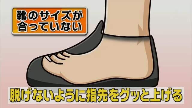蘿蔔腿和美腿的「關鍵差別」就在腳趾站姿 專家用「一條繃帶」馬上讓你變細腿!