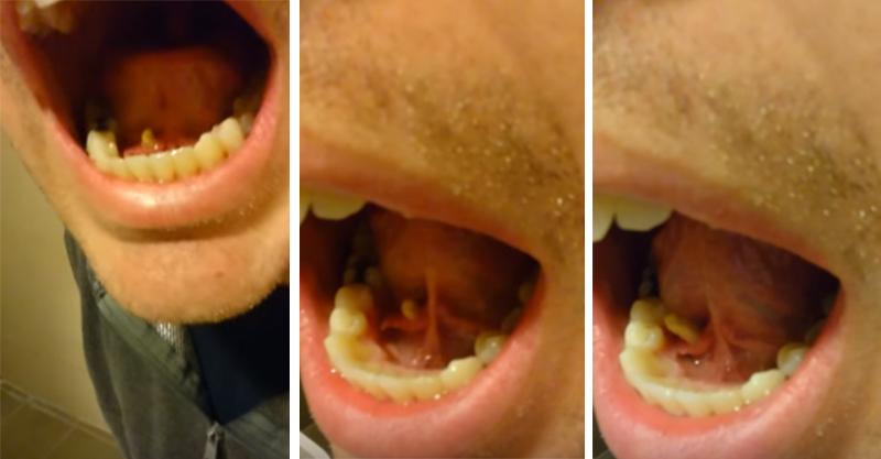 男子舌頭底下延伸出來的「口結石」,「等整條拉出來時」你吐完後就會開始狂喝水!