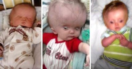 男嬰還沒出生就被診斷出水腦「醫生一直勸媽媽墮胎」,6年後他的模樣醫生都不敢相信!
