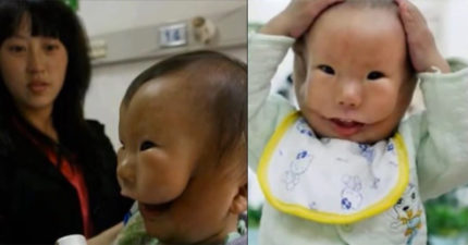 一出生爸爸就不敢讓媽媽看到他的長相,媽媽一看到「面具」就開始痛哭了...