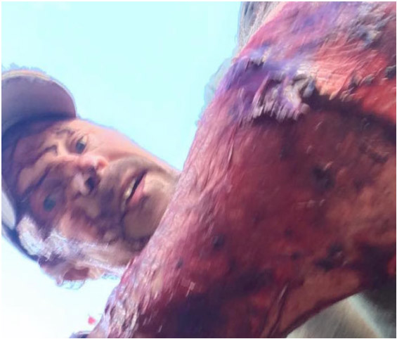 他一天內被熊攻擊2次「頭都已經快裂開開車送自己到醫院」,拍下戰後影片比《神鬼獵人》還猛!