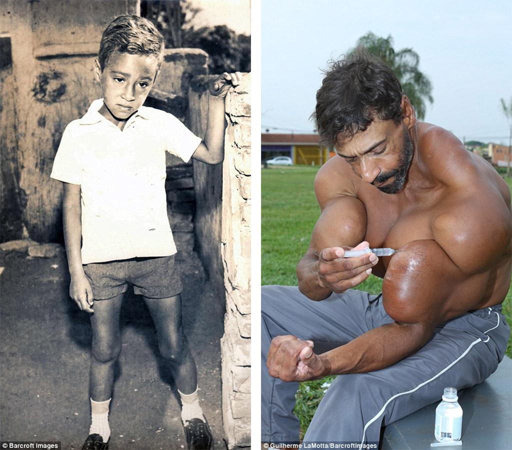 他戒掉毒癮後就靠著「注射這種藥物」成為「巴西浩克」,脖子後面的屁股已經讓人無法直視了!