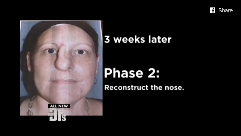 這名女性被前男友「殘忍咬掉鼻子」,奇蹟重建手術後的「超正自信模樣」真的讓人太感動了!
