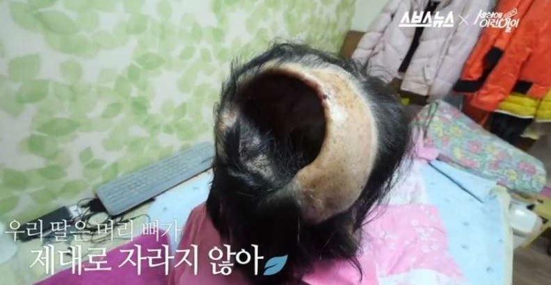 韓國女生罹患罕病「臉部像蠟燭整個融化」頭頂還有大洞,她痛苦告白「不想活了」讓爸爸都泣不成聲...