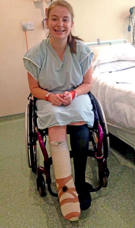 她「內嵌趾甲」最後卻潰爛成恐怖血洞,嚴重到必須截肢但她說「我很開心」...(血腥慎入)