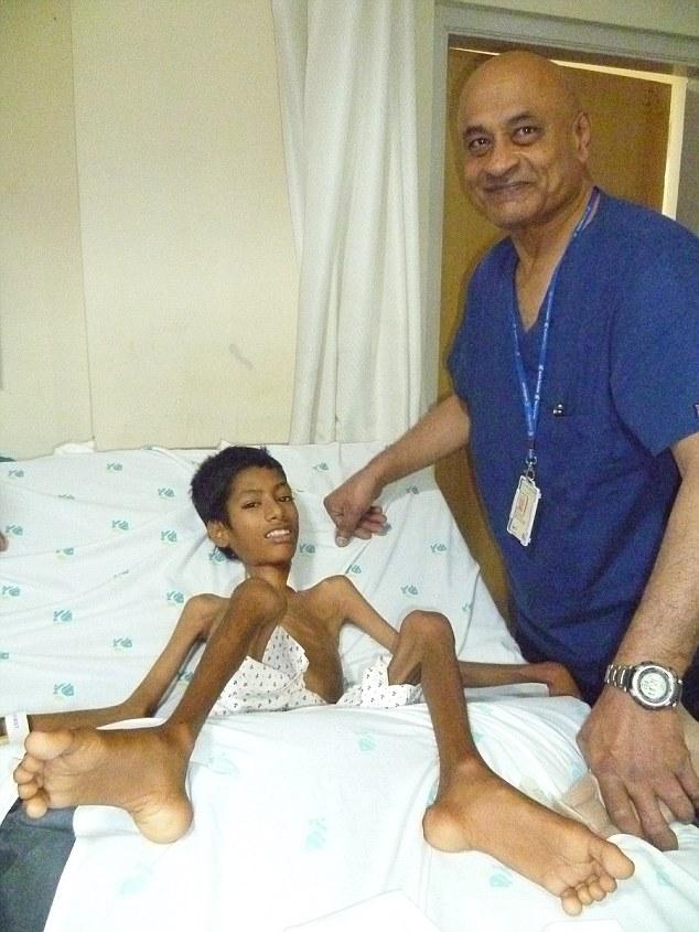印度男孩原本「頭部只能掛胸前」連上學都沒辦法,經過手術7個月後終於拆下矯正器的模樣讓人感動到爆哭!