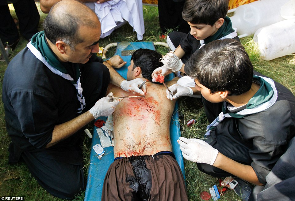 Several of the men and boys opened up large wounds that had to be stitched back together by doctors