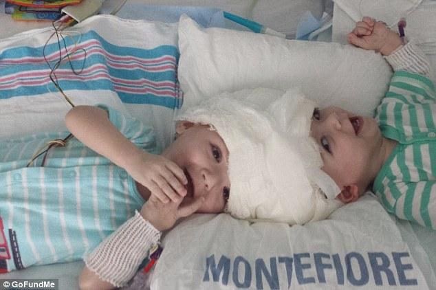 這對雙胞胎小兄弟「一出生就頭腦相連」被迫開刀,20小時馬拉松手術後的分離模樣會讓你感動流淚!