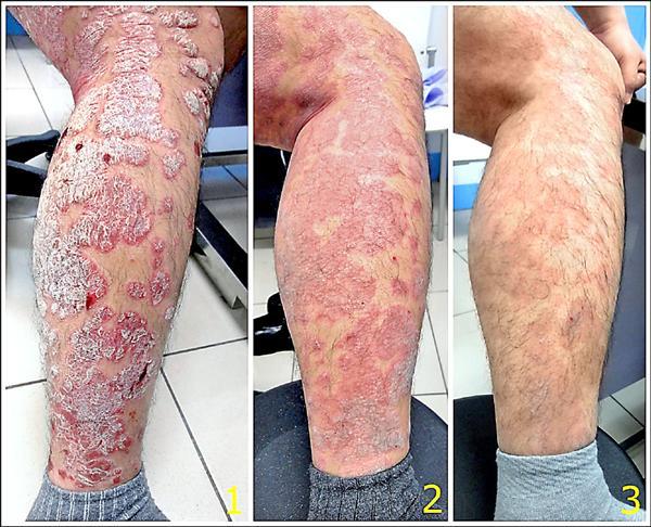 如果你已經「感冒一個月都沒好」要小心了!醫生警告:「嚴重的話會無法走路」!