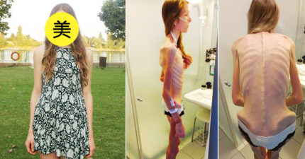 180公分正妹患厭食症「一度暴瘦到30公斤」差點死掉,現在她擺脫骷顱生活「美麗自信笑容」感動無數網友!