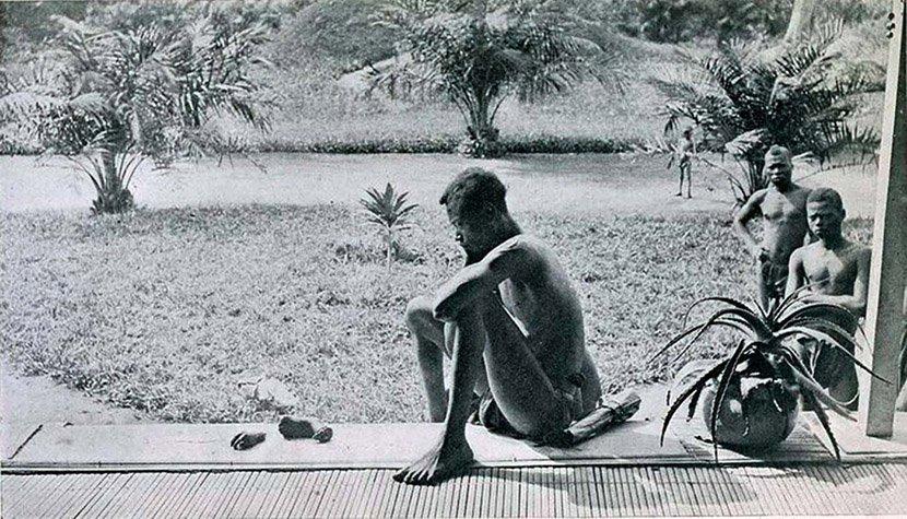 攝影師真實呈現出「人類最殘暴的一面」,悲愴的父親默默看著前面5歲女兒被砍掉的手腳...