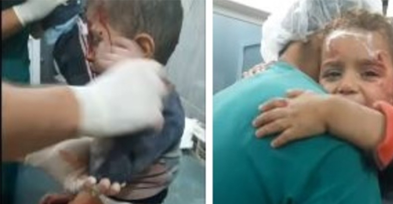 家被俄國空襲破壞後生還的小孩,「怕到不肯放開護士」畫面讓人看到心痛...