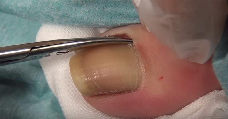 這段「指甲內生」治療手術,當指甲被「抽出」時,莫名的爽感就湧出來了!