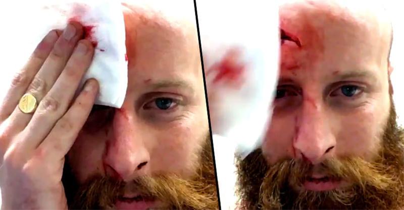 喝醉男子跌倒撞到頭,事後拍出了這段「皮拉下來看到頭骨」讓所有人在5秒內尖叫!(兒童不宜)