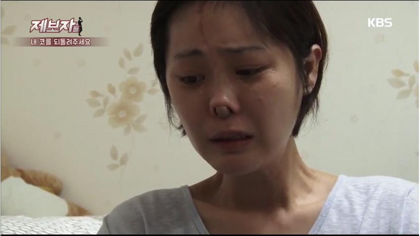 南韓女子把鼻子整高後呼吸不順醫生卻說「很正常」,幾天後她的鼻子就爛掉了...