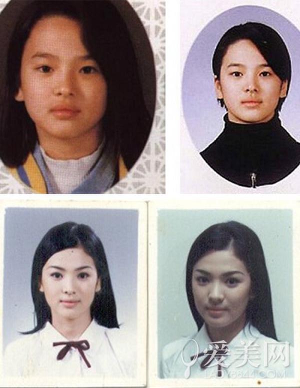 宋慧喬PO出自己兒時照片,網友:「確定沒整形!」。看到學生時期照片更是震驚!