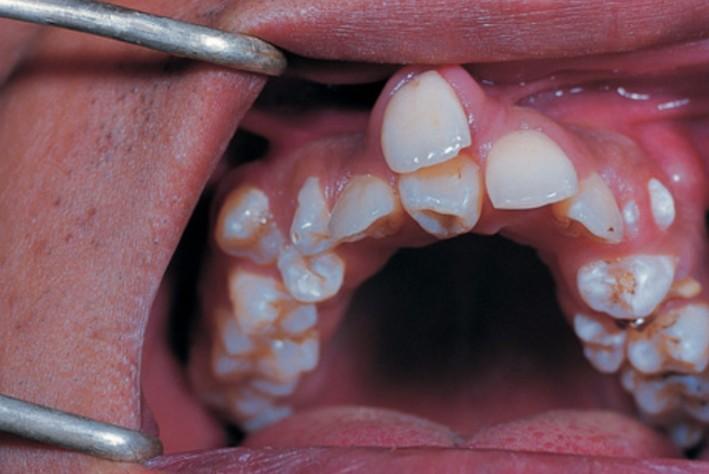 8歲小男孩竟長出「雙排牙齒」,牙醫:都是爸媽沒有顧好!」