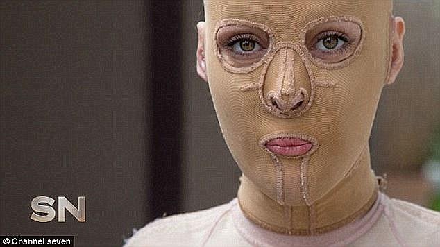 她的美麗外表遭人嫉妒還放火燒她「毀容到連媽媽都認不出來」,歷經30個月治療現在的模樣比以前更美!